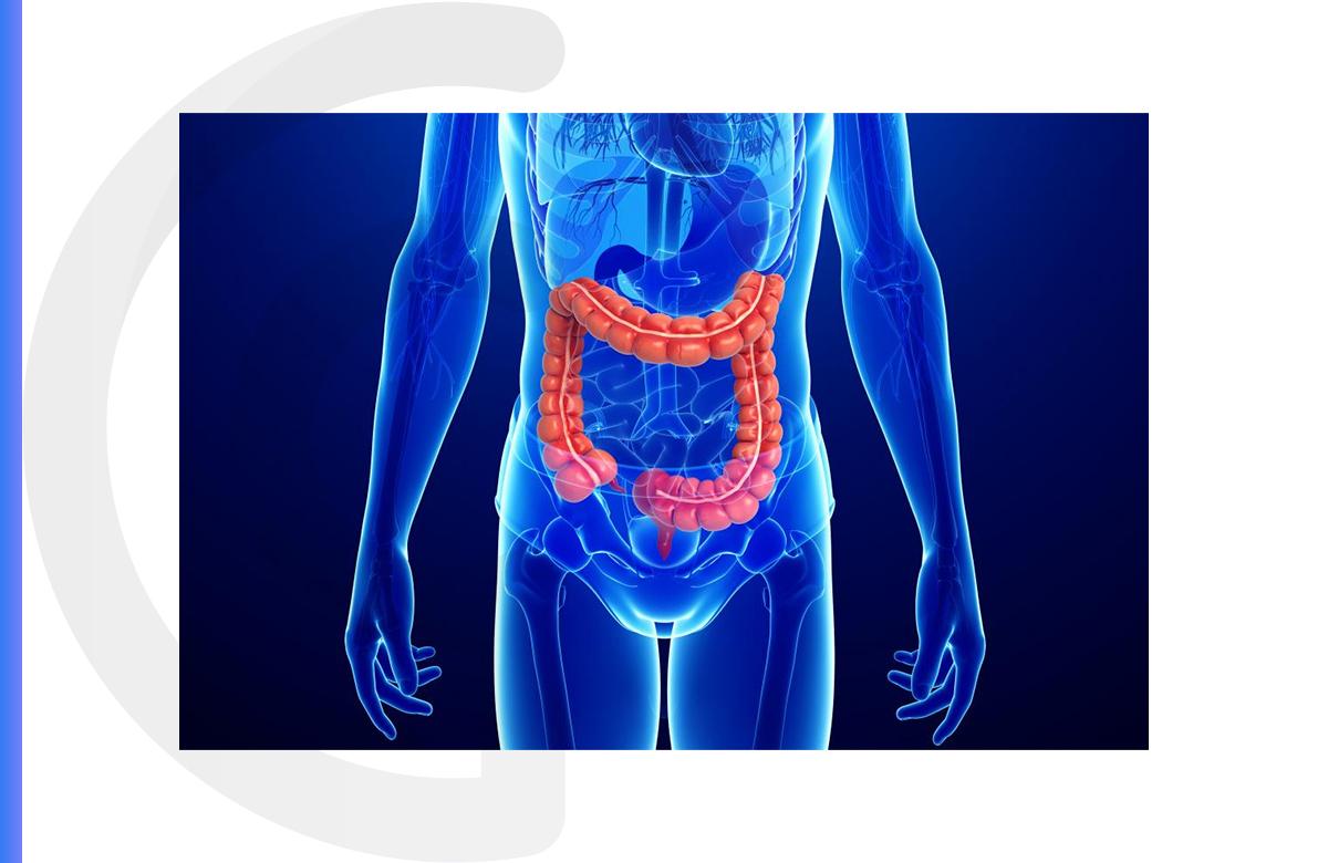 Imagem postagem Afinal, o que é doença de Crohn?