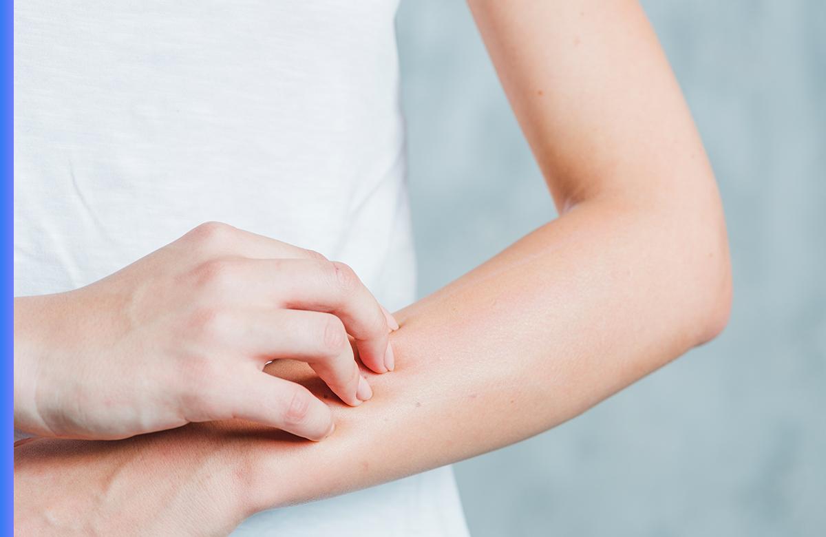 Imagem postagem É Possível Desenvolver Alergia Alimentar na Fase Adulta? Fique Atento aos Sintomas.