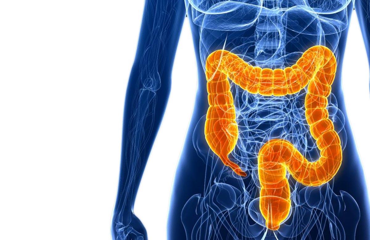 Imagem postagem É Possível ter uma Vida Normal com uma Colostomia/Ileostomia?